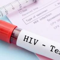 Esclareça 12 dúvidas importantes sobre HIV/Aids